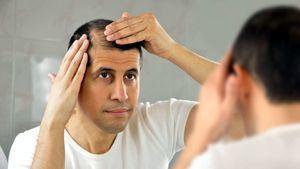 La pérdida de cabello y el trasplante capilar en Turquía