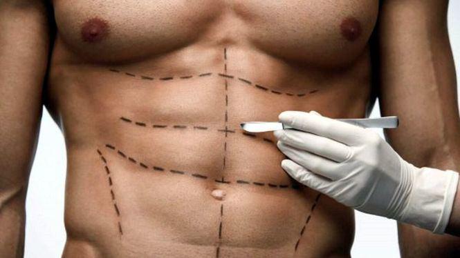 La tendencia de cirugía estética en hombres para el Día del Padre